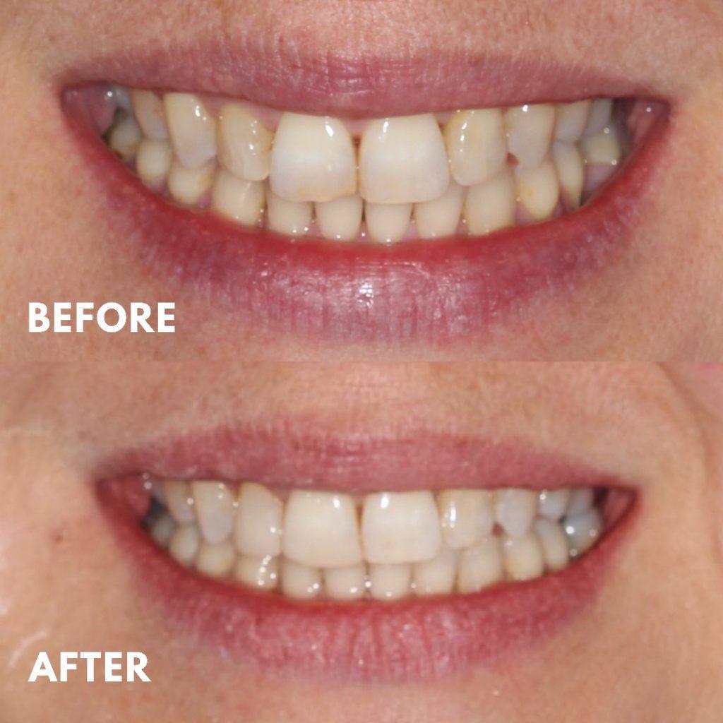 Composite Veneers, Smile Makeover, Mornington Peninsula Dentist, Chipped Teeth, Smile