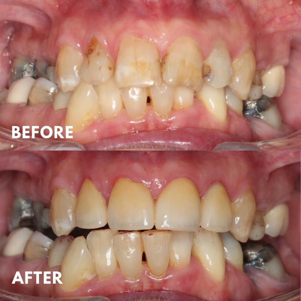 Porcelain Veneers, Smile Makeover, Damaged Teeth, Mornington Peninsula Dentist