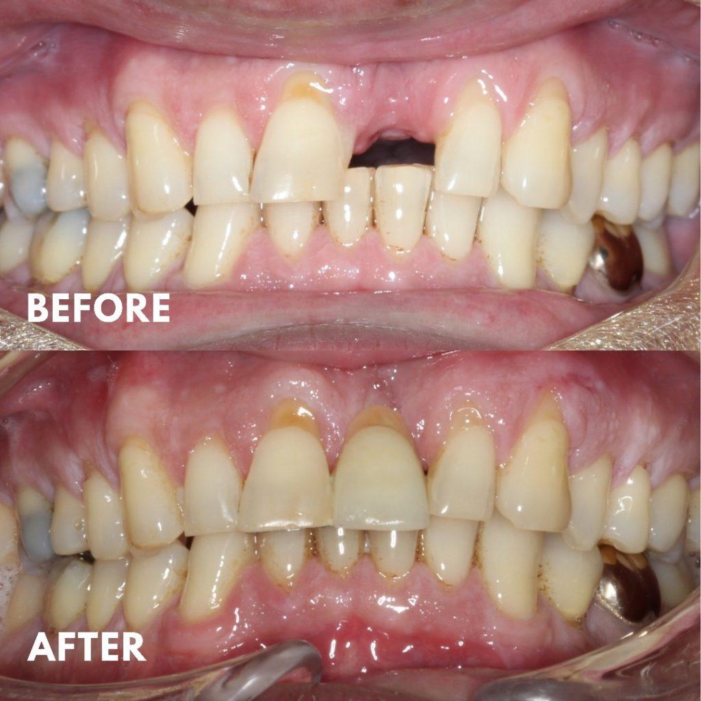 Maryland Bridge. Mornington Peninsula Dentist, Missing Tooth, Dental Bridge, Implant, Tooth Replacement