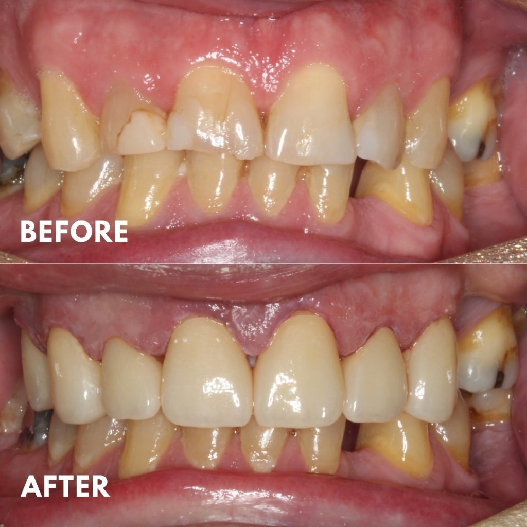 Upper Porcelain Veneers, Broken Tooth, Mornington Peninsula Dentist, Front Teeth