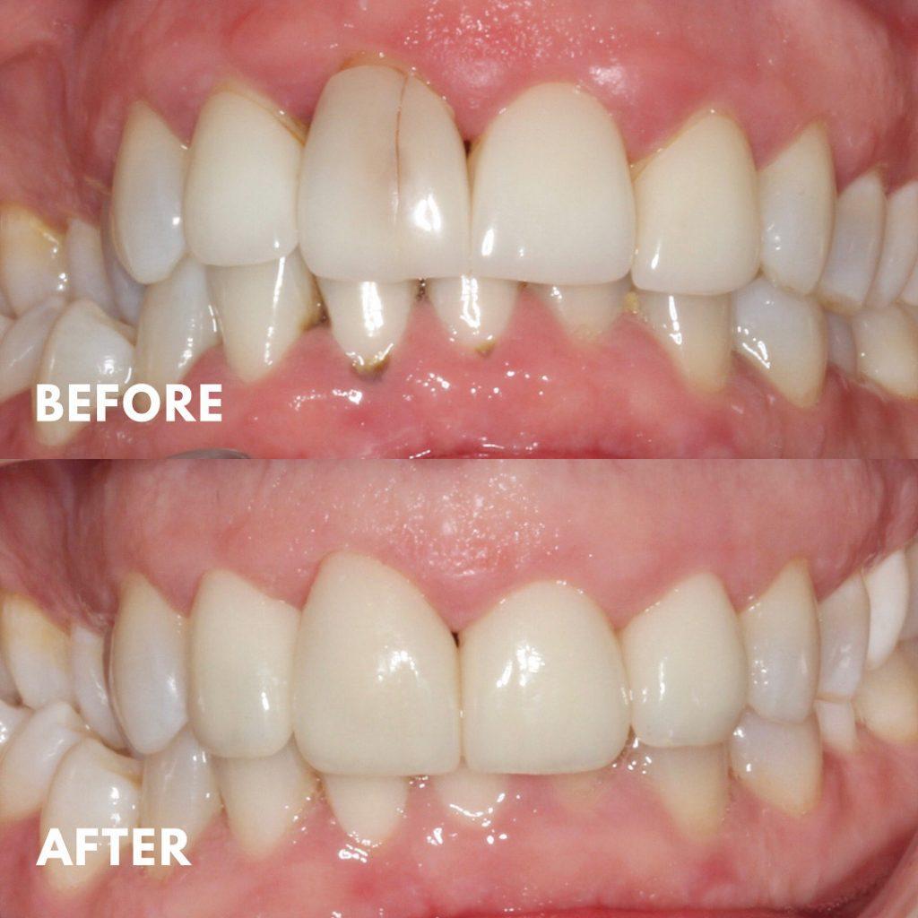 Porcelain Veneer Replacement, Cracked Tooth, Broken Veneer, Mornington Peninsula Dentist