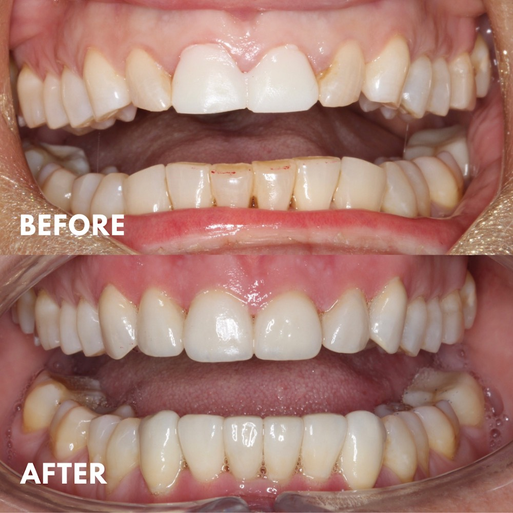 Porcelain Veneers, Worn Down Teeth, Smile Makeover, Mornington Peninsula Dentist, Front Teeth